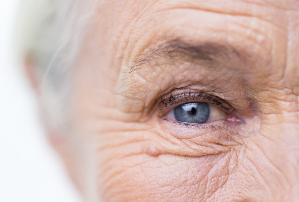 Close-up of eye suffering from wet age-related macular degeneration.