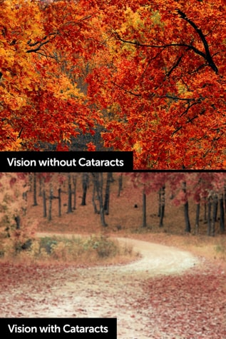 Iowa cataract symptoms