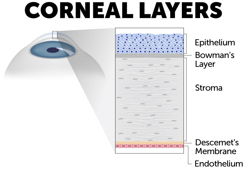 Cornea layer diagram showing corneal layers at risk for corneal injuries and corneal abrasions.