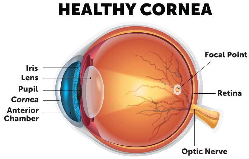 Cornea diagram of an eye with a healthy cornea and light refraction.
