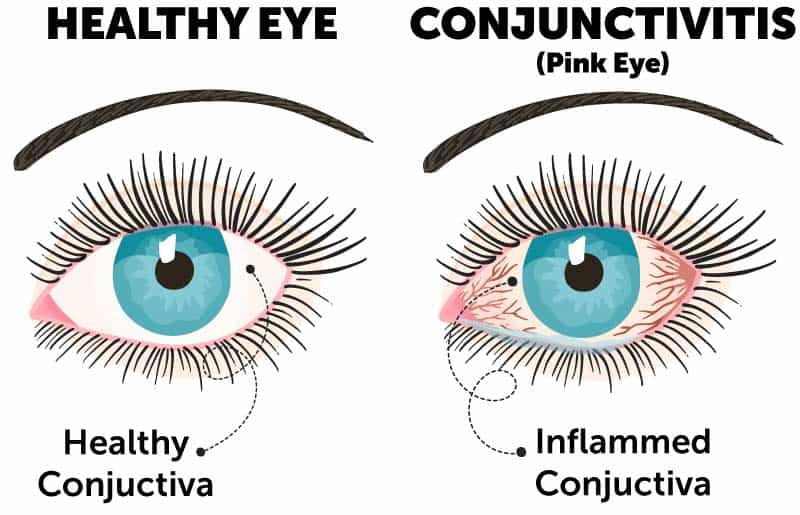 Pink eye diagram comparing healthy eye and eye with pink eye and inflamed conjunctiva (conjunctivitis).
