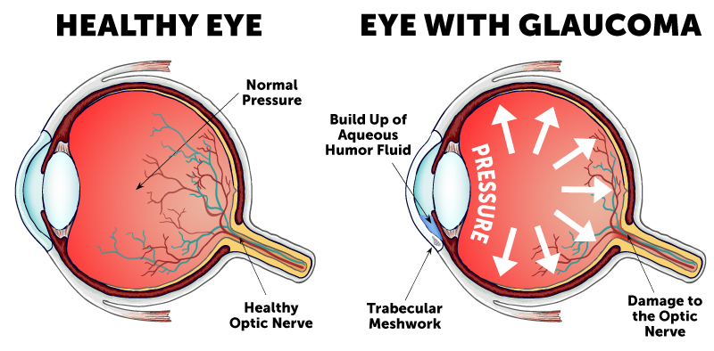 Eye with glaucoma symptoms