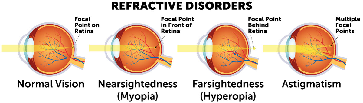 Refractive disorder diagram comparing cornea curvature and light refraction in myopia, hyperopia and astigmatism.