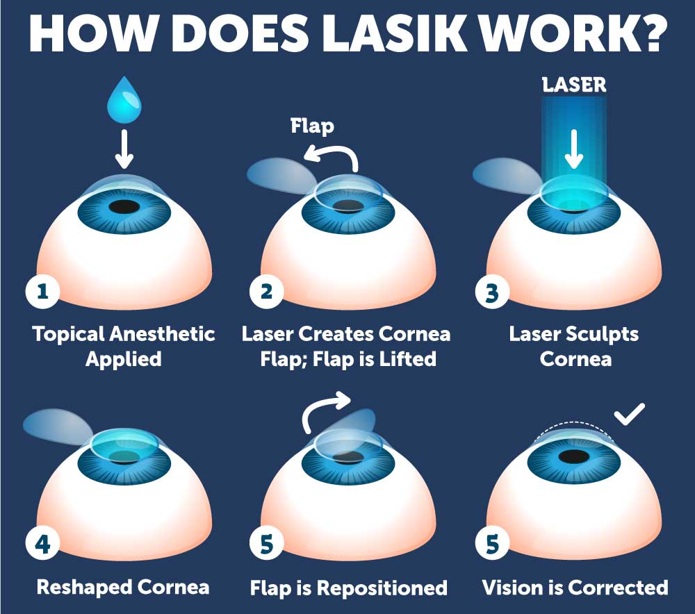 Step-by-step diagram of how LASIK works at Wolfe Eye Clinic.