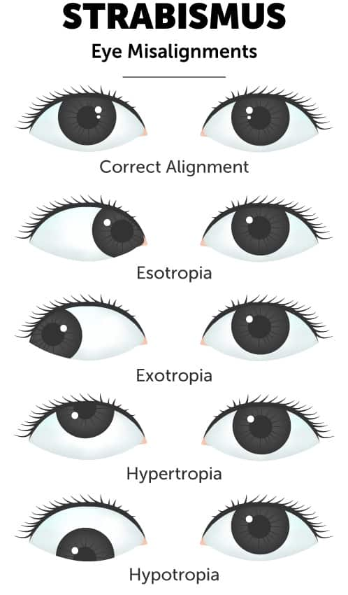 Strabismus eye misalignment diagram illustrating the different ways eyes can drift due to strabismus in comparison to healthy eye alignment.