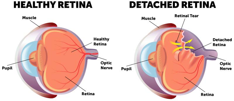 Detached retina diagram comparing a healthy retina to an eye with a retinal tear and retinal detachment.