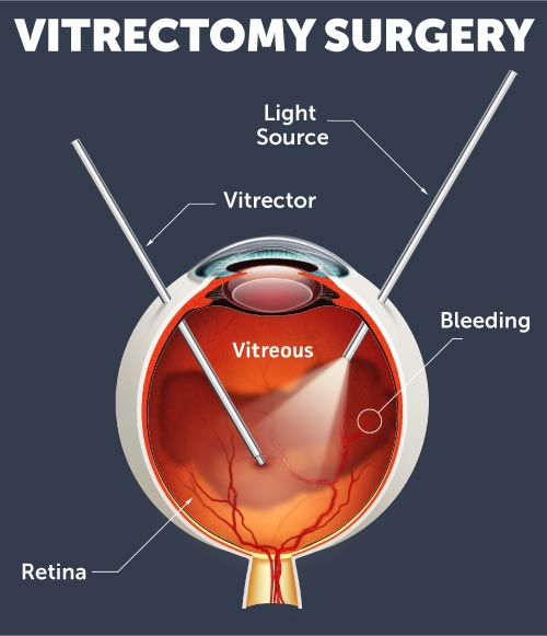 Retina surgery diagram illustrating vitrectomy surgery for retina conditions in Iowa at Wolfe Eye Clinic.